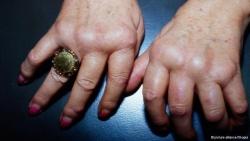 Питание  оказывает влияние на развитие артрита